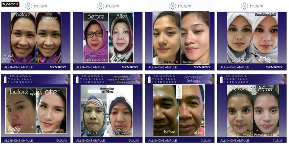 Distributor Trulum Skincare